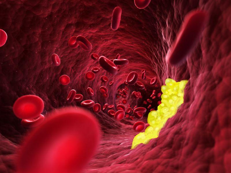 Un panel internazionale di esperti ha elaborato un documento che raccoglie le evidenze cliniche raccolte sull'uso di alimenti nutraceutici, colesterolemia e rischio cardiovascolare