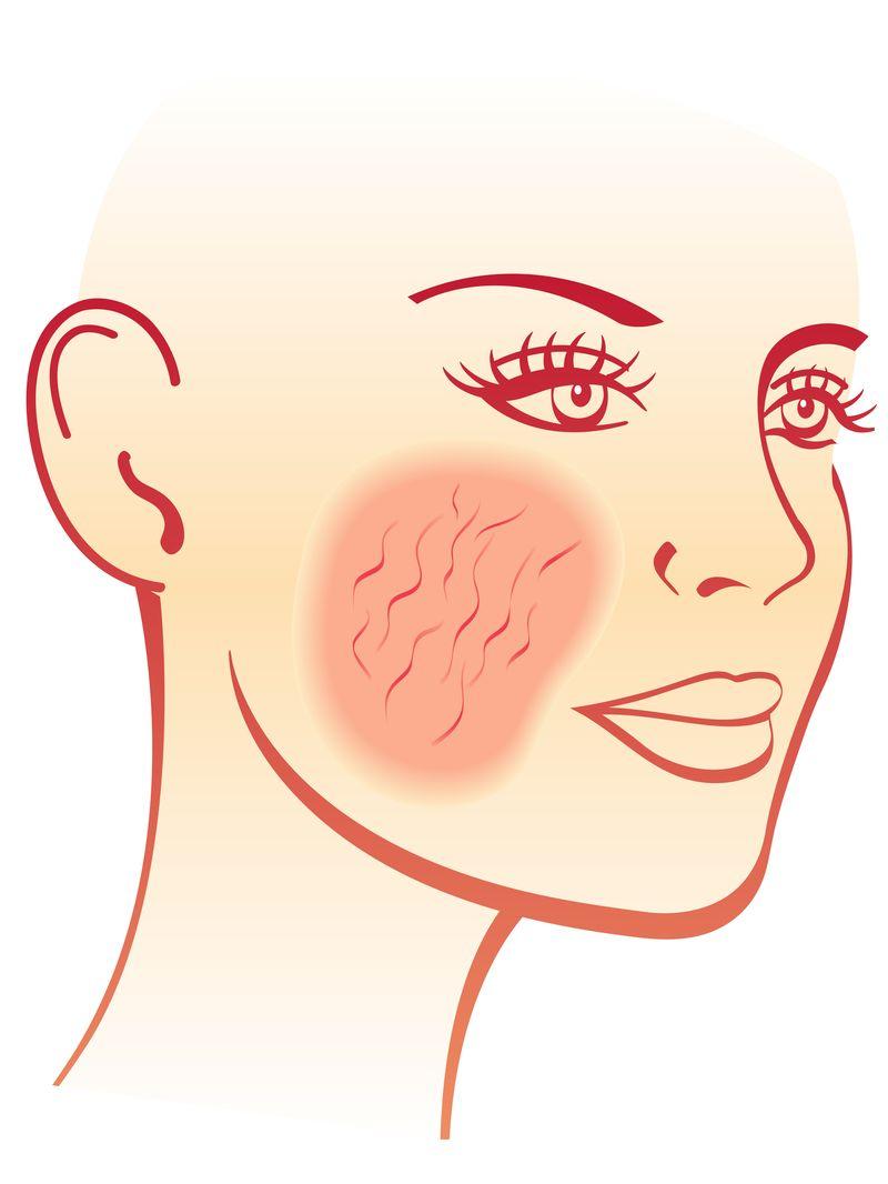 Studio sulla crisina per la dermatite atopica