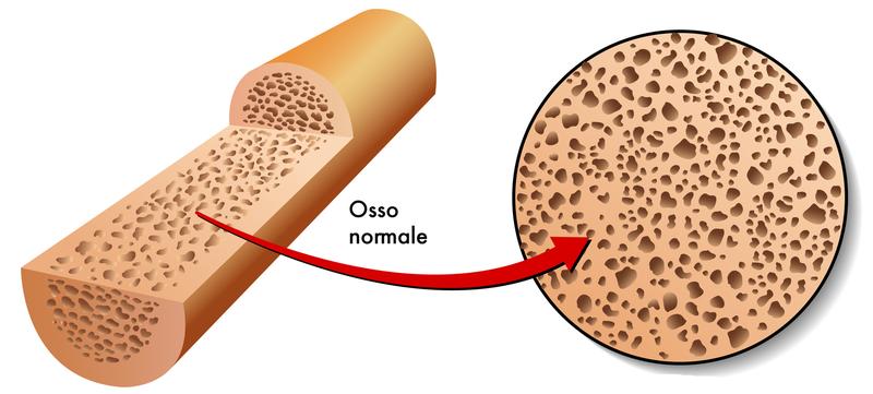 Uno studio su curcumina e osteolisi infiammatoria suggerisce la potenziale utilità di questo estratto nel prevenire e trattare la mobilizzazione asettica