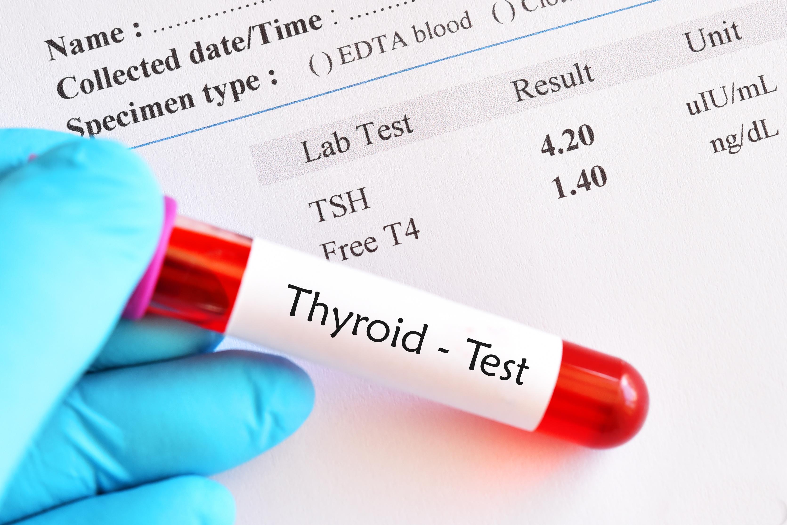 nterferenti endocrini e funzione tiroidea